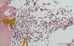Бактериальный цистит у кошки. Cell-block. Рис. 14