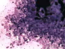 Цилиарная аденома задней камеры глаза у собаки породы лабрадор. Цитология. Рис. 18