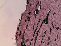Цилиарная аденома задней камеры глаза у собаки породы лабрадор. Гистология. Рис. 33