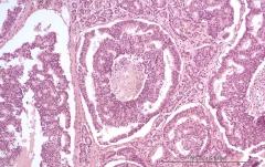 Дуктальная карцинома поджелудочной железы у кошки. Гистология. Рис. 9.
