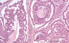 Дуктальная карцинома поджелудочной железы у кошки. Гистология. Рис. 13.
