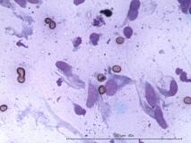 Фибросаркома челюсти у собаки породы алабай. Цитология. Рис. 3