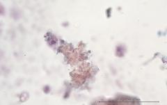 Хондросаркома молочной железы у собаки породы ши-тцу. Жидкостная цитология. Рис. 9
