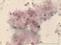 Иридоцилиарная аденома глаза у кролика. Жидкостная цитология. Рис. 17