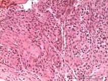 2-хкомпонентная опухоль у кошки сибирской породы. Рис. 6.