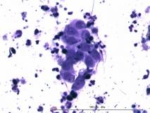Церуминозный цистоматоз у беспородной кошки. Цитология. Рис. 13.