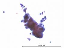 Церуминозный цистоматоз у беспородной кошки. Цитология. Рис. 14.