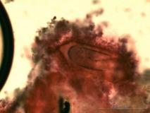 12 - Исследование спиртового смыва из мочевого пузыря немецкой овчарки. Жидкостная цитология осадка спиртового смыва из мочевого пузыря. Окраска по Папаниколау.