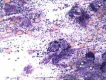 17 - Мастоцитома повышенной клеточности у собаки породы пудель.
