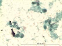 20 - Мастоцитома повышенной клеточности у собаки породы пудель.