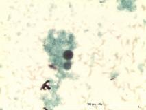 22 - Мастоцитома повышенной клеточности у собаки породы пудель.