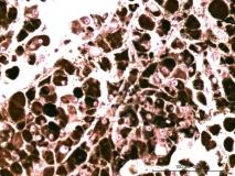 13 - Меланома слизистой оболочки полости носа у собаки породы шарпей