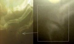 03 - Плоскоклеточный ороговевающий рак фаланги пальца у собаки породы ризеншнауцер. Рентген пальцев правой грудной конечности, боковая проекция.