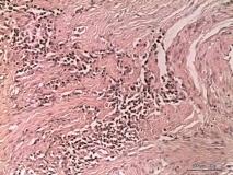 08 - Плоскоклеточный ороговевающий рак фаланги пальца у собаки породы ризеншнауцер. Гистология.