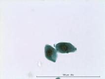 10 - Плоскоклеточный ороговевающий рак фаланги пальца у собаки породы ризеншнауцер. Жидкостная цитология.