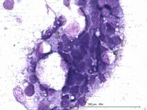 Т-клеточная лимфома у собаки породы бульмастиф. Рис. 3.