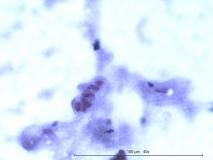 Лейомиома стенки мочевого пузыря у собаки. Цитология. Рис. 4