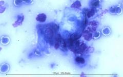 Листовидная пузырчатка у золотистого ретривера. Цитология. Рис. 4