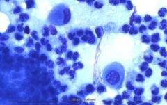 Листовидная пузырчатка у золотистого ретривера. Цитология. Рис. 10