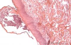 Листовидная пузырчатка у золотистого ретривера. Гистология. Рис. 23