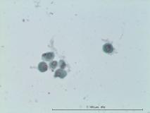 Мастоцитома кожи у мопса. Жидкостная цитология. Рис. 8