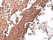 Мастоцитома кожи у мопса. Иммуногистохимия (антиген Mast Cell Try). Рис. 13