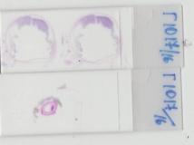 Меланома глаза у кошки. Микропрепарат глазного яблока. Рис 3