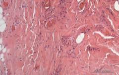 Множественные кисты на месте шовного материала в области затылочной кости у собаки породы кокер-спаниель. Гистология. Рис. 5