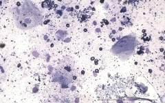 Множественные кисты на месте шовного материала в области затылочной кости у собаки породы кокер-спаниель. Цитология. Рис. 7