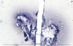 Некротический гранулематозный лимфаденит у кошки. Цитология. Рис 5