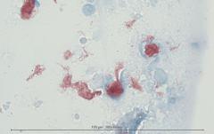Некротический гранулематозный лимфаденит у кошки. Цитология. Рис 13