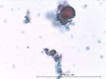 Папиллярная эндометриальная карцинома матки у кошки. Жидкостная цитология. Рис. 7