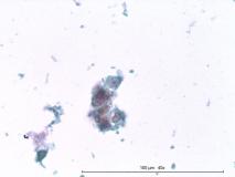 Папиллярная эндометриальная карцинома матки у кошки. Жидкостная цитология. Рис. 8
