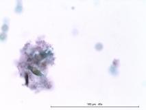Папиллярная эндометриальная карцинома матки у кошки. Жидкостная цитология. Рис. 10