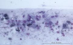 Плоскоклеточная карцинома кожи у амурского полоза. Цитология. Рис. 12