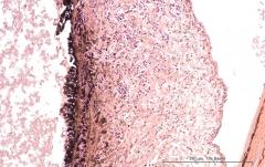 Подострый увеит травматического генеза у кота. Гистология. Рис. 6