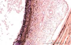 Подострый увеит травматического генеза у кота. Гистология. Рис. 7