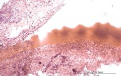 Подострый увеит травматического генеза у кота. Гистология. Рис. 10