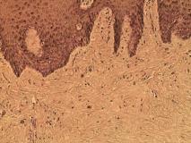 Пример фибромы. Рис. 2. Гистология.
