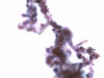 Пример фибросаркомы. Рис. 6. Жидкостная цитология.