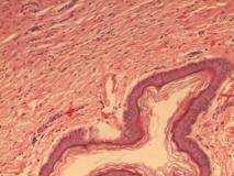 Пример гемангиомы. Рис. 2. Гистология.