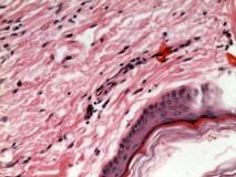 Пример гемангиомы. Рис. 3. Гистология.