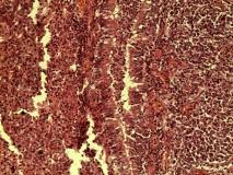Пример гистиоцитарной саркомы. Рис. 3. Гистология.