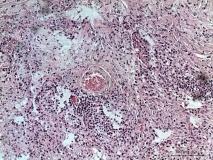 Пример гистиоцитомы. Рис. 2. Гистология.