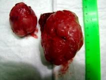 Пример лейомиомы. Рис. 1. Внешний вид опухоли.