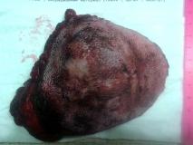 Пример лейомиосаркомы. Рис. 1. Внешний вид опухоли.