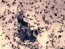 Пример миксосаркомы. Рис. 9. Цитология.