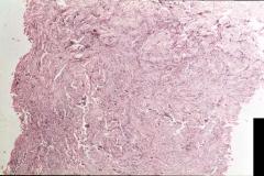 Пример рабдомиосаркомы. Рис. 2. Гистология.