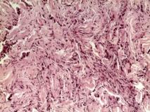 Пример рабдомиосаркомы. Рис. 3. Гистология.