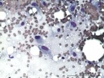 Пример рабдомиосаркомы. Рис. 13.
